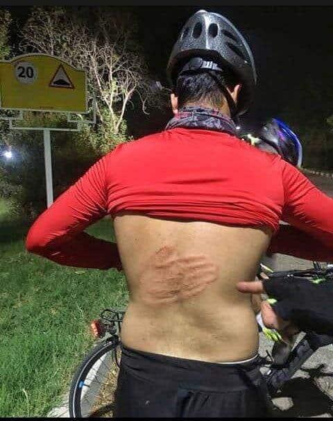 آزار و اذیت دوچرخه سوار