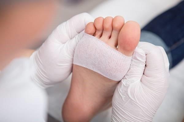 انواع پانسمان ها برای درمان زخم