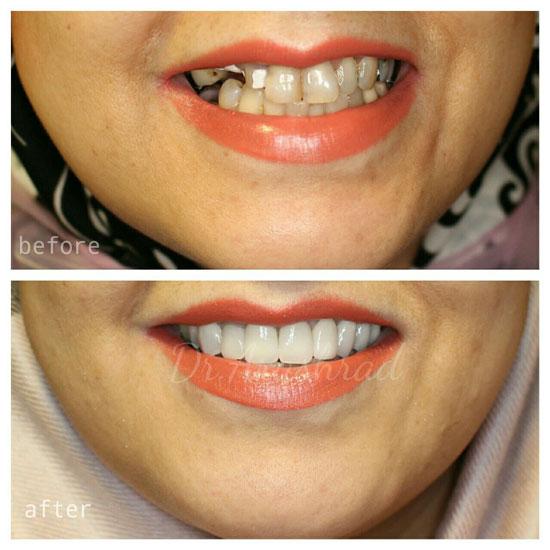 روکش دندان زیرکونیا